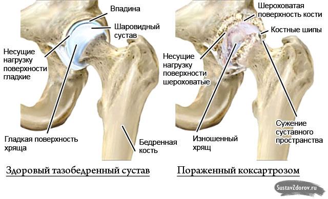 artroza metode de tratament de 3 grade)